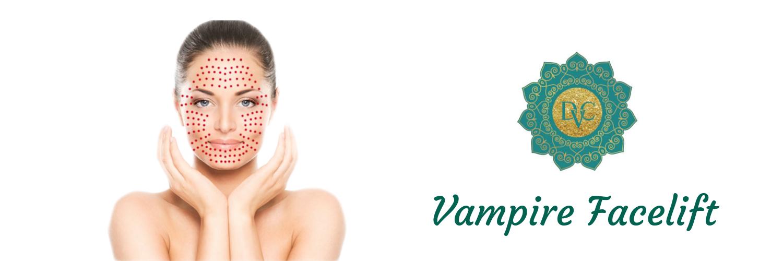 Vampire Facelift®